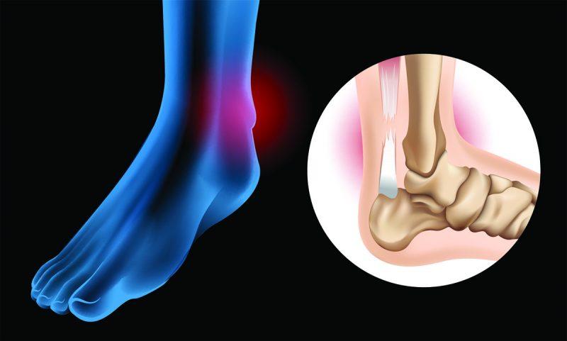 Štandardnou metódou liečby Achillovej šľachy je operácia. Foto: Shutterstock