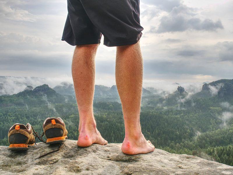 Keď sa kvôli pľuzgierom nedá kráčať, treba ich prepichnúť. Foto: ShutterstockKeď sa kvôli pľuzgierom nedá kráčať, treba ich prepichnúť. Foto: Shutterstock
