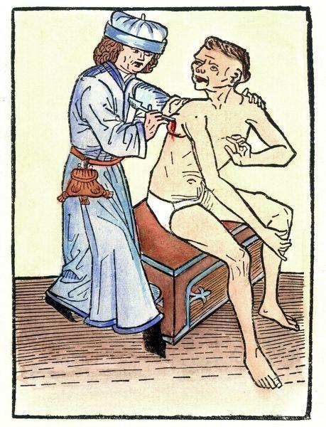 Lekár prepichol morom spôsobený vred, čo pravdepodobne prispievalo k šíreniu choroby, 1482.